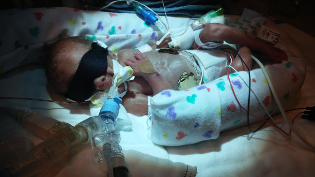 Little Hats, Big Hearts - Declan's Preemie Story